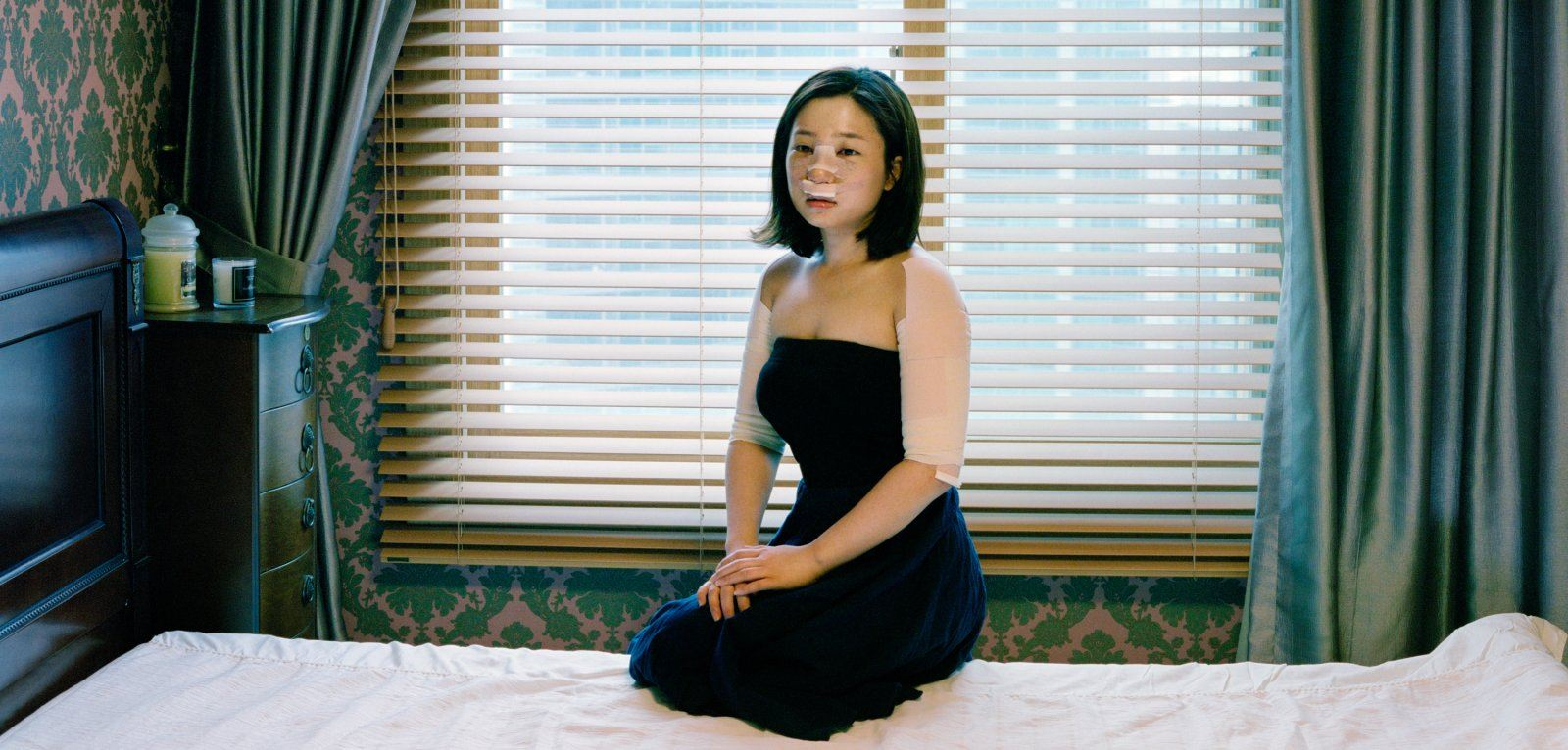A bandaged South Korean woman recovering from plastic surgery.
