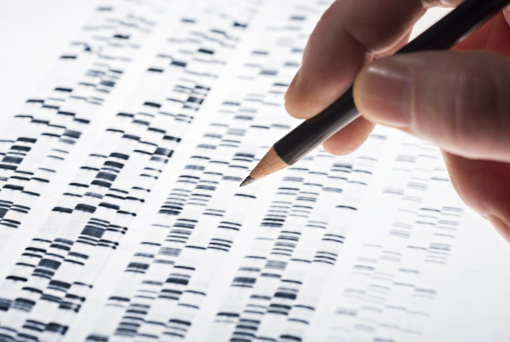 Close-up photo of a DNA test.
